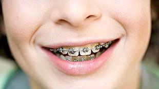 Открытый рот у ребенка причины