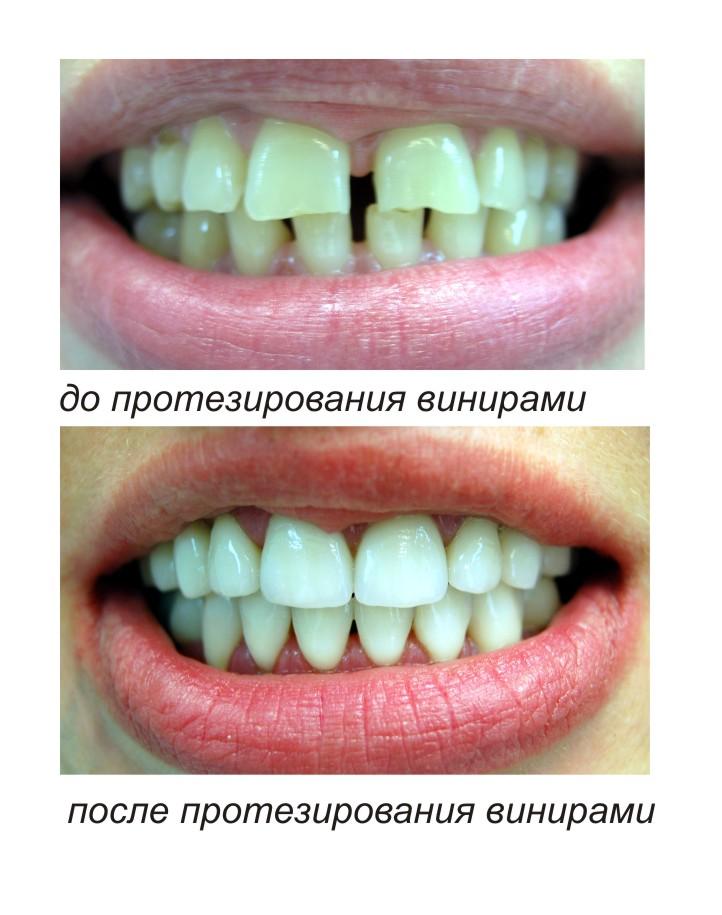 Хорошее отбеливающее средство для зуб
